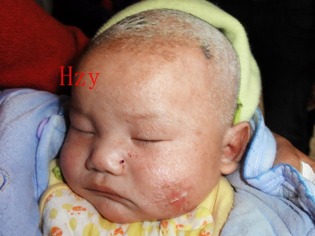 是湿疹还是脂溢性皮炎(婴儿湿疹)