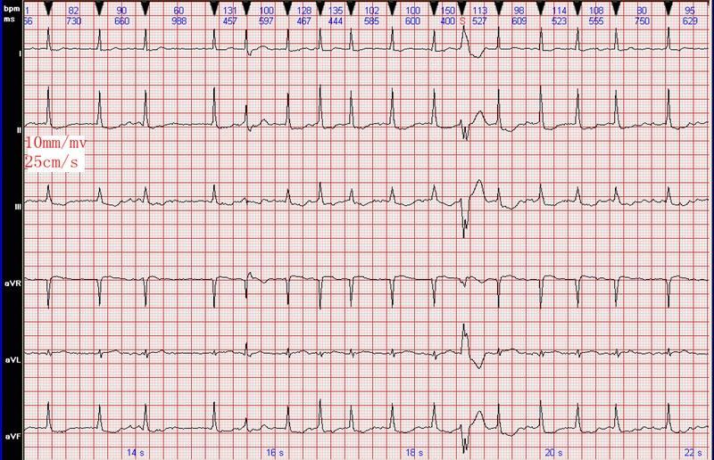 心电图知识:心房颤动