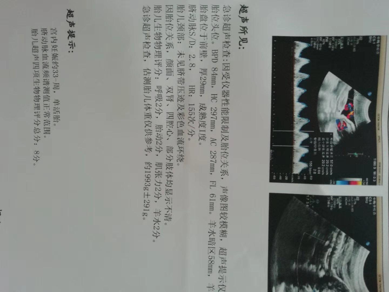 週 胎動 13 妊娠