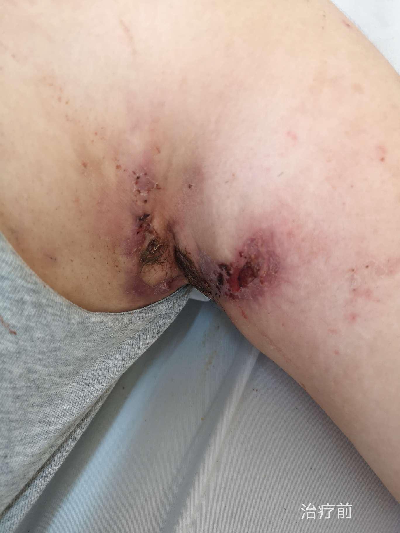 化膿 性 汗腺 炎