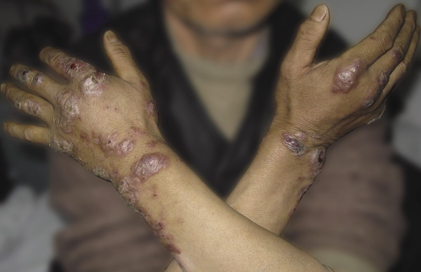 持久性隆起性红斑,血管炎,皮肤血管炎