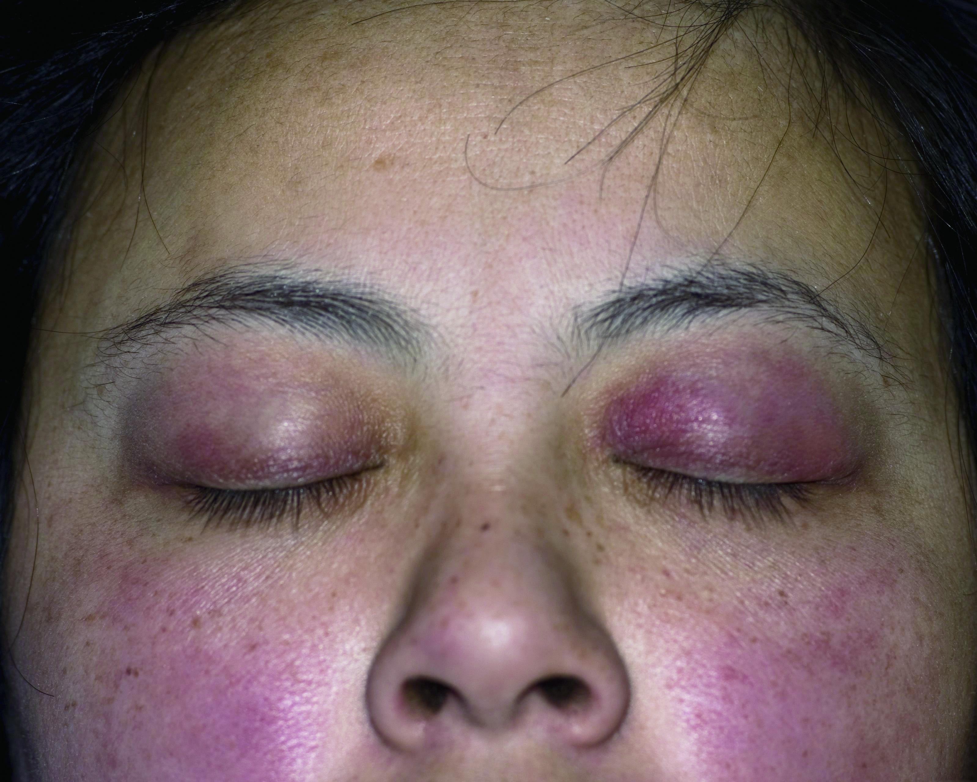 多发性肌炎,皮肌炎,水肿,结缔组织病